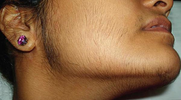 На фото показан пример избыточного роста терминальных волос у дамы по мужскому типу.