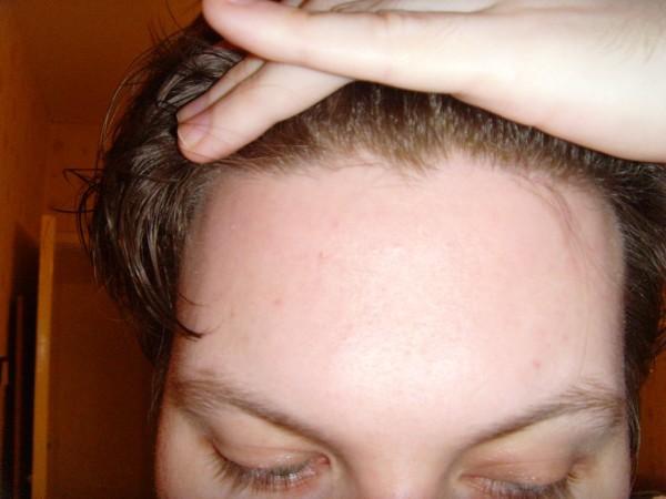 На фото: проблема с волосами на линии роста шевелюры