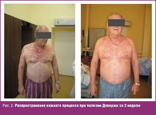 На фото видно, как при ослабленном иммунитете всего за две недели могут разрастись очаги поражения.