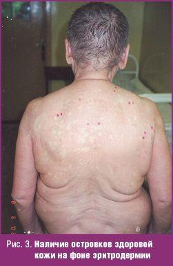 На фото видно наличие эритродермии, на фоне которой расположены островки здоровой кожи.