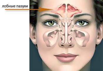 На фото видно расположение лобных пазух, воспаление которых и приводит к возникновению боли