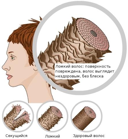 На рисунке хорошо видна структура ломких и здоровых волосков