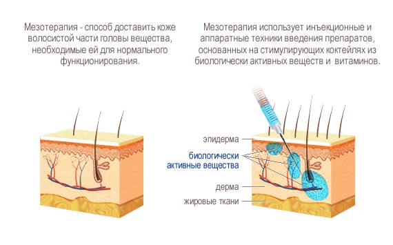Наглядное разъяснение принципа мезотерапии