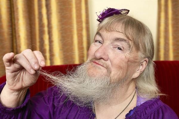 Нередко первые волоски на бороде появляются в период менопаузы, как в случае с жительницей США Вивиан Уилер