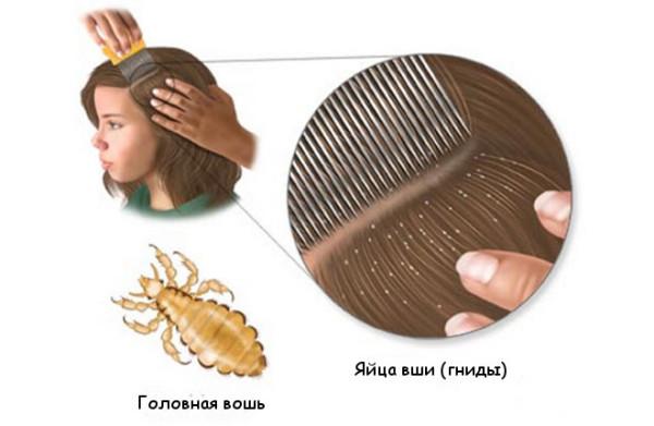 Обзор средств против вшей и гнид