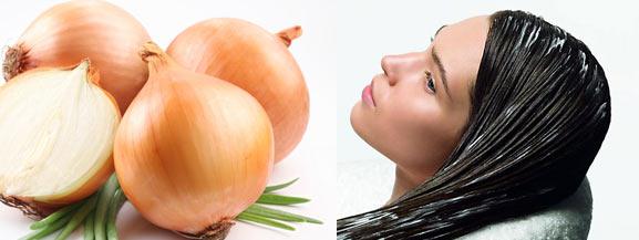 От выпадения волос вас спасет репчатый лук.