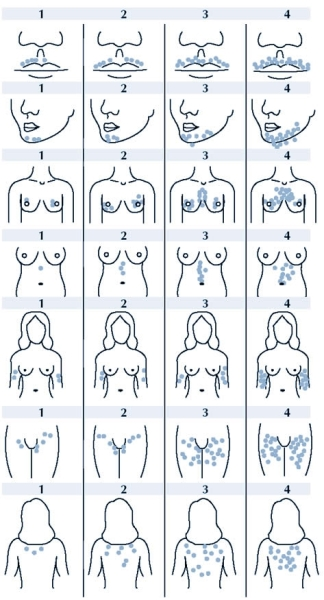 Оценка гирсутизма у женщин с использованием шкалы Ферримаена-Голвея.