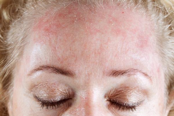 Отсутствие теста на аллергию небезопасно для вашего здоровья
