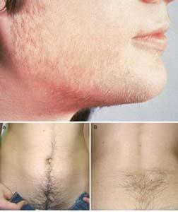 Пациентка эндокринологии удаление волос обязательно сочетает с лечением гормонального сбоя.