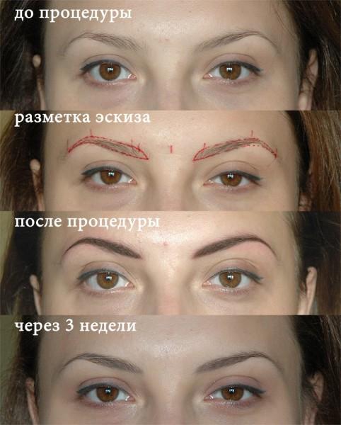 После заживления этот макияж светлеет: сохраняется 30-50% первоначального цвета.