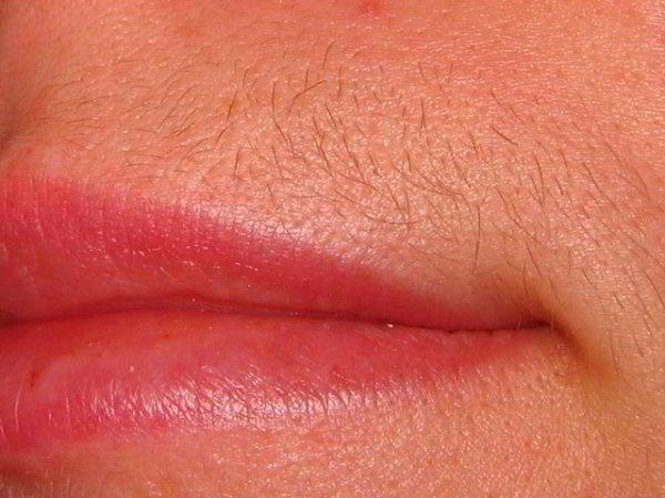 Появление волос над верхней губой может быть обусловлено несколькими причинами – обязательно проконсультируйтесь у специалиста