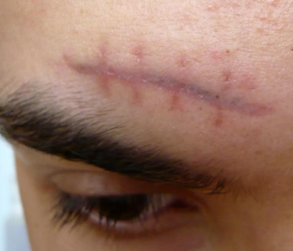 Правильное лечение раны позволяет избежать неприятных последствий после травмы в области надбровных дуг, но рубец все равно останется