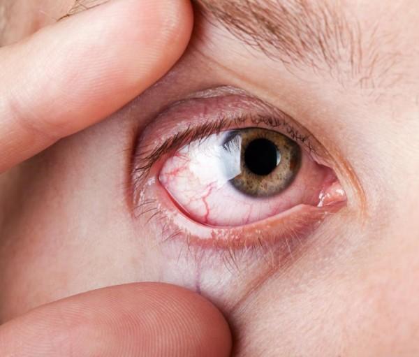 При длительном нахождении инородного тела происходит раздражение и покраснение глаза.