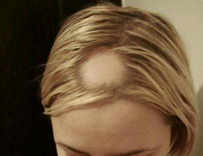 При очаговой алопециипотеря волос происходит только на отдельных сегментах головы.