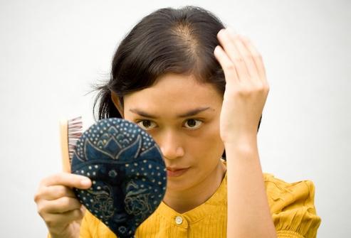 Причинами алопеции часто становятся перенесенные сильные стрессы.