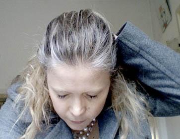 Пример преждевременного обесцвечивания волос (на фото)
