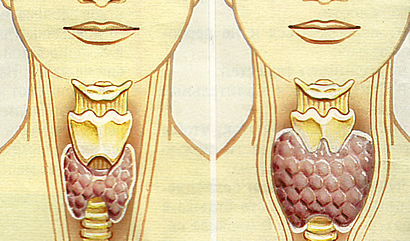Проблемы со щитовидкой часто отражаются и на состоянии волосяных стержней