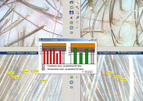 Результаты спектрального анализа позволяют получить полную картину здоровья ваших локонов