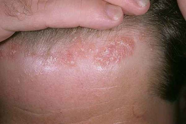 Себорея волосистой части головы: на фото видно покраснение и чешуйки эпидермиса