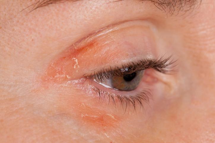 Комариный укус у ребенка фото