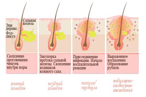 Схема развития гнойника