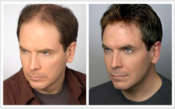 Системы волос для женщин и мужчин способны скрыть легкую плешивость или полную алопецию