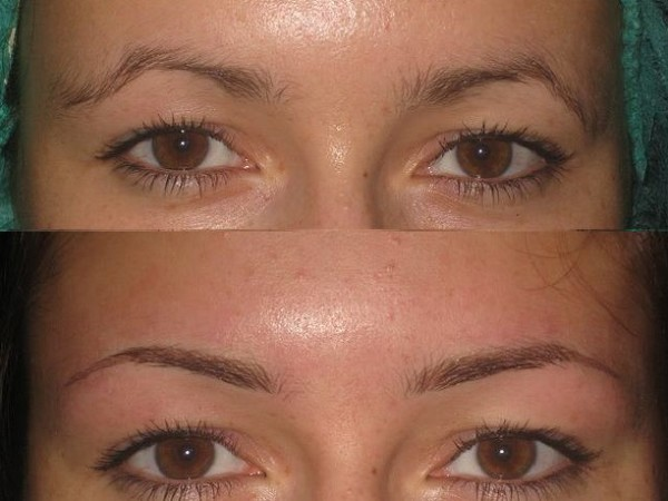 Сравните фото до и после процедуры