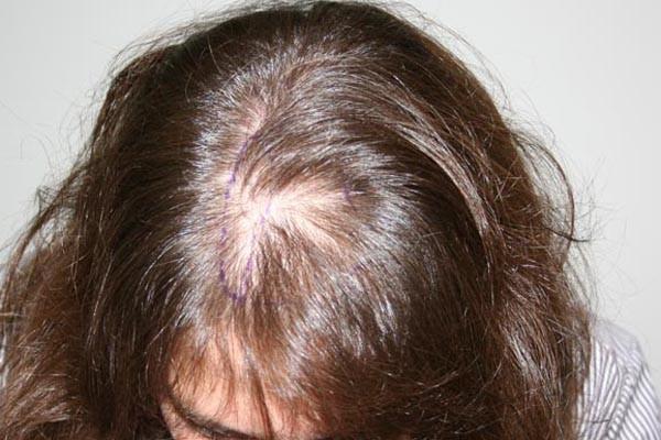 Типичная картина при гормональной алопеции