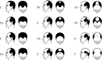 Типы облысения у мужчин на разной стадии заболевания андрогенетической алопецией.