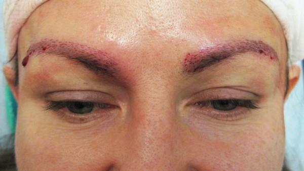 Трансплантация бровей имеет достаточно длительный реабилитационный период и не дает абсолютной гарантии приживления всех волосков
