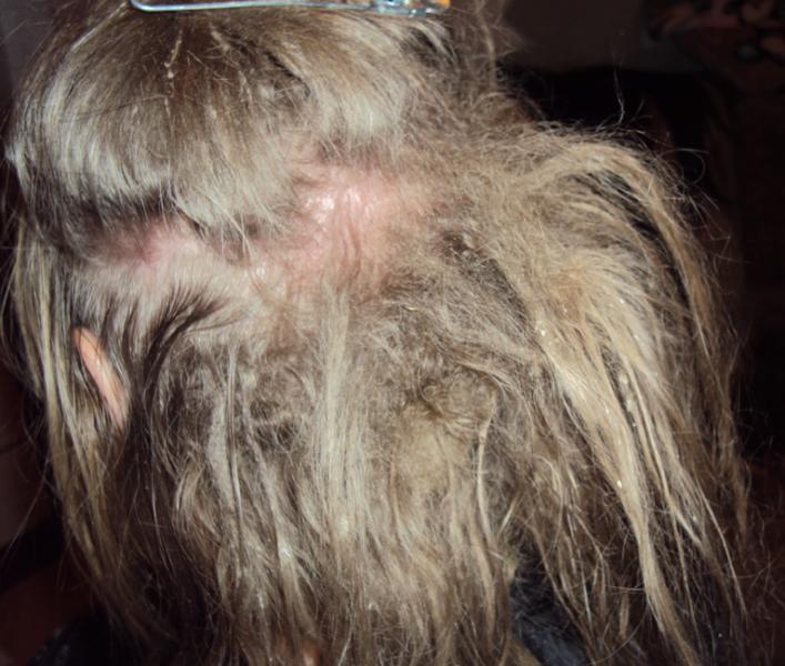 Как расчесать очень запутанные волосы? 12 советов