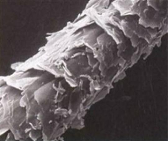 Увеличенное фото поврежденного волоса – внешне он напоминает еловую шишку