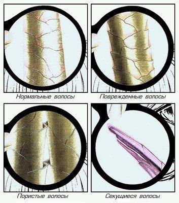 Увеличенное изображение волоса в различном состоянии