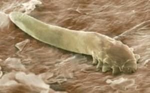 Внешний вид паразита