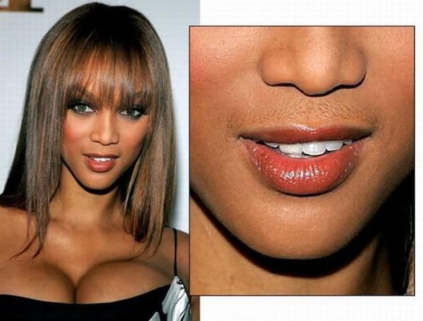 Волосы на лицах «южных» женщин - явление обыденное.