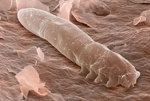 Возбудитель демодекоза под микроскопом