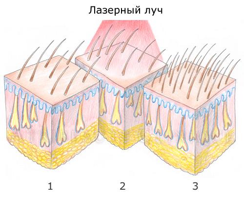 Воздействие лазерного прибора направлено на прорастание волосков.