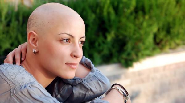 Выпадают ли волосы после лучевой терапии или химиотерапии? Да, но это – практически неизбежная плата за возможность избавиться от рака.