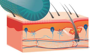 Здесь схематически показан способ обработки головы мезороллером